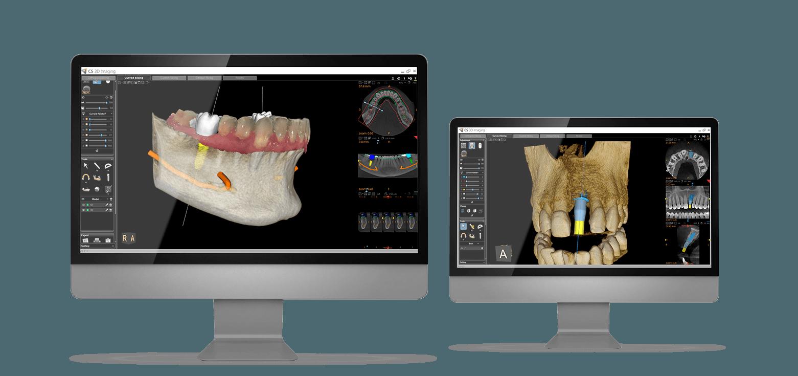 Dental Implants Centre