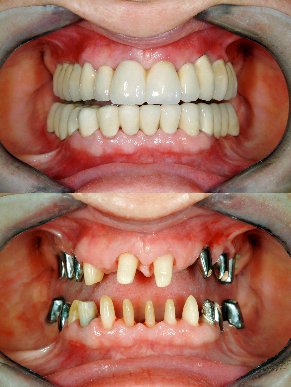 Dental Implant Dentists in Lancashire