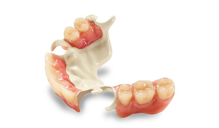 Cosmetic Partial Dentures