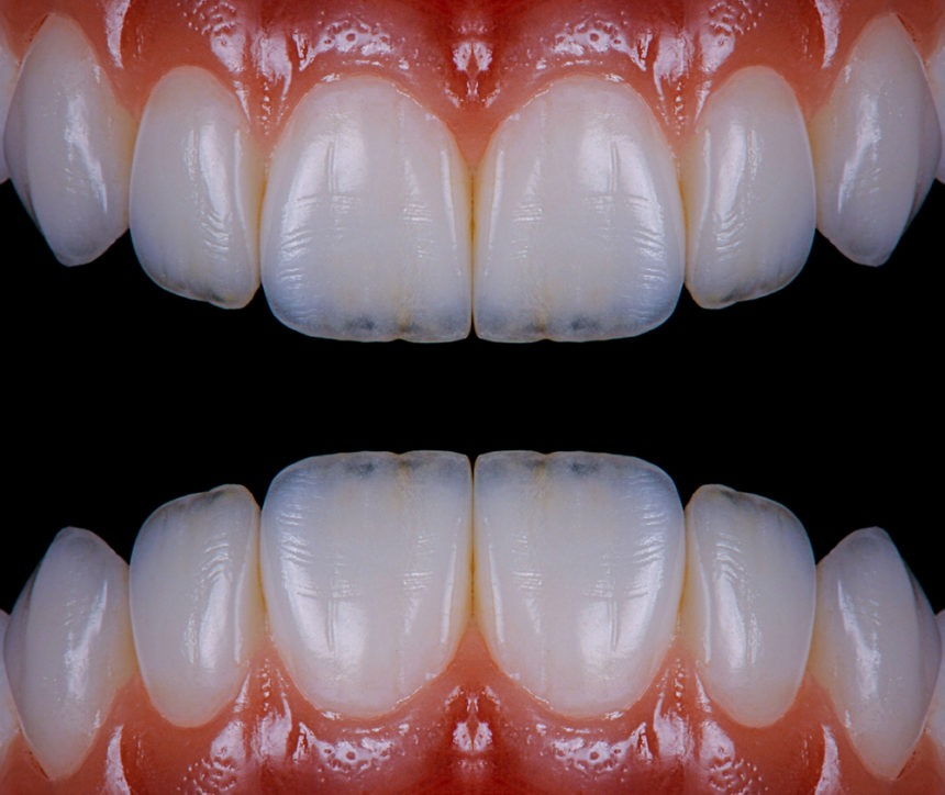 Cosmetic Dentistry MakeOvers