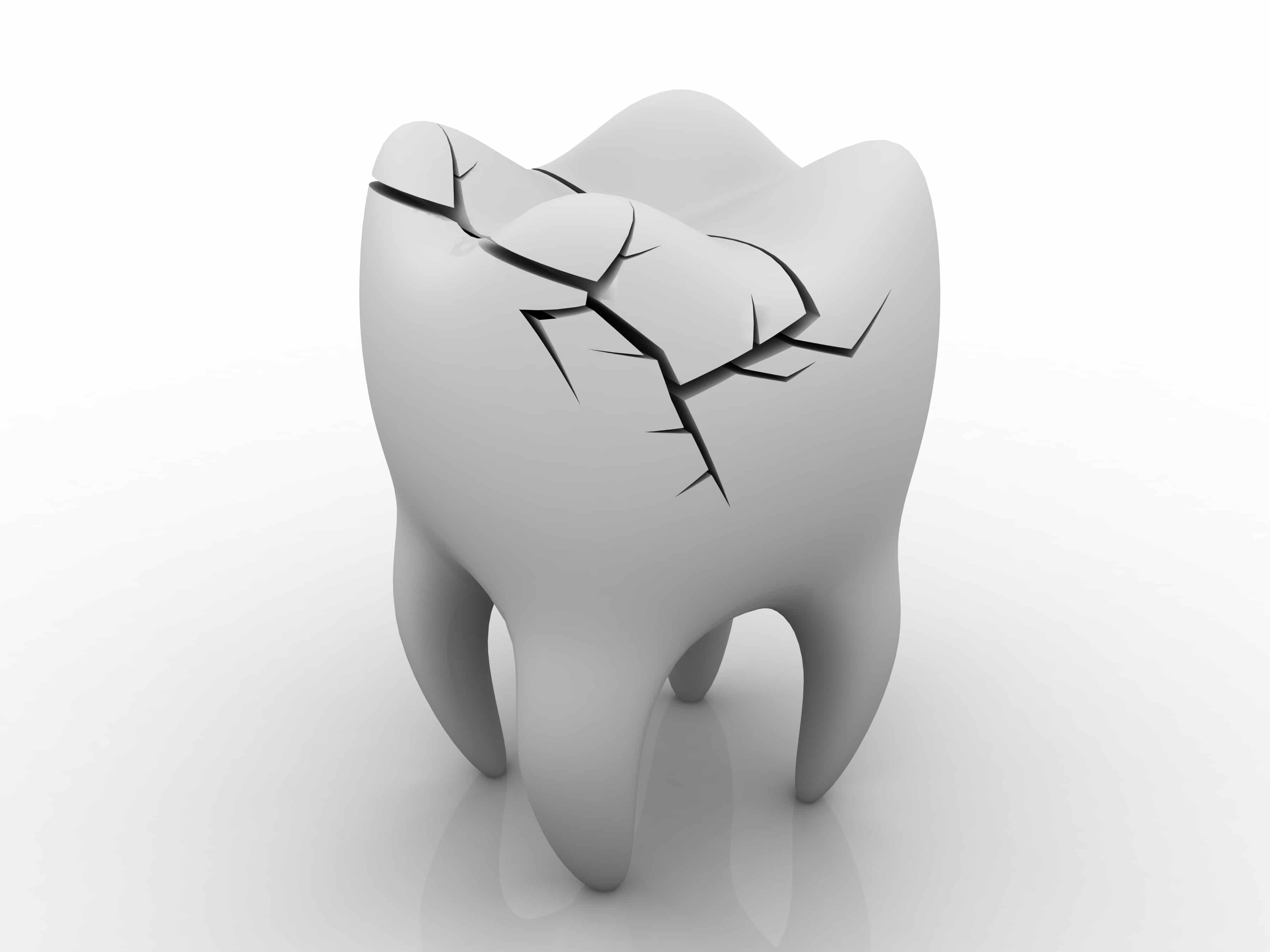 Chipped Tooth Treatment Options