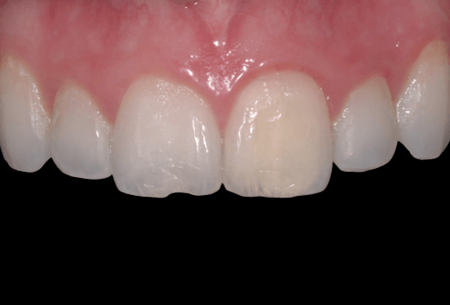 White fillings before photo