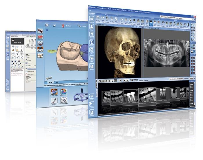 Dental Implants Planning