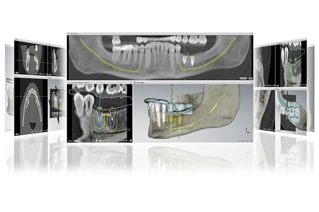 Recommended Implant Dentist