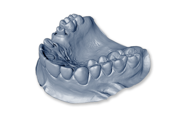 Dentures Lancashire
