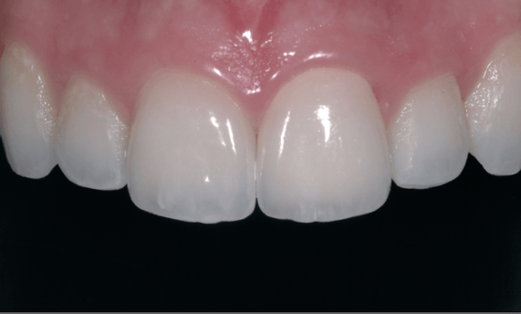 Tooth Coloured filling- front teeth after photo