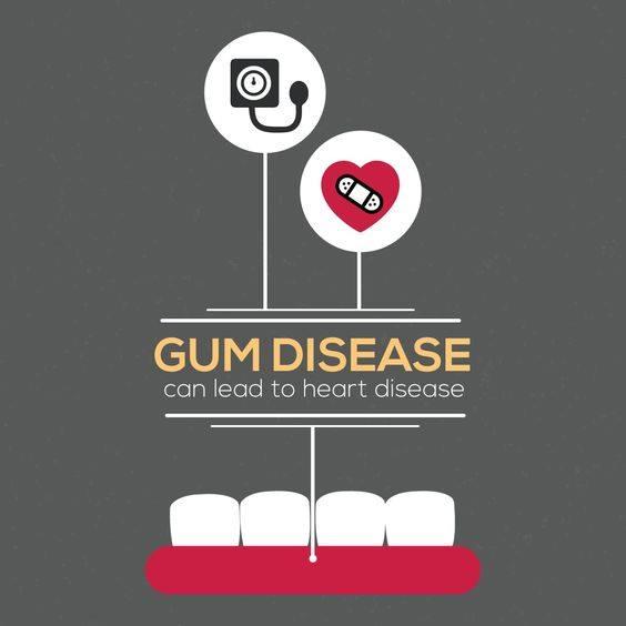 dental hygiene - gum disease