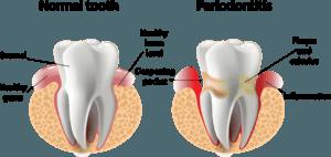 gum dentistry