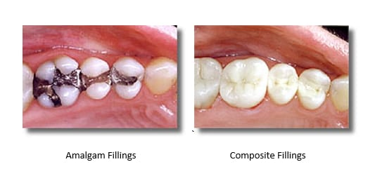 White Fillings replacing Mercury Fillings