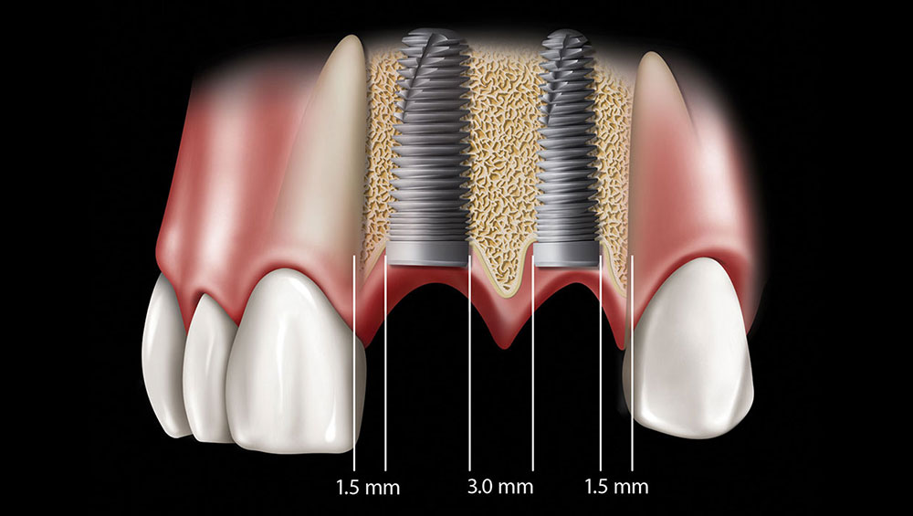 Missing Teeth Replacements