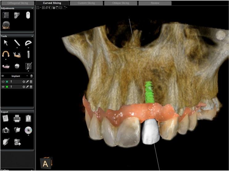 Dental Implant Specialist UK