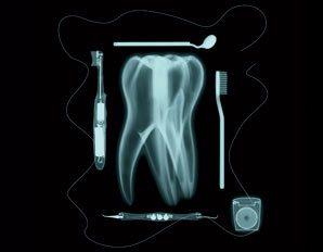 poor oral hygiene causing gum disease