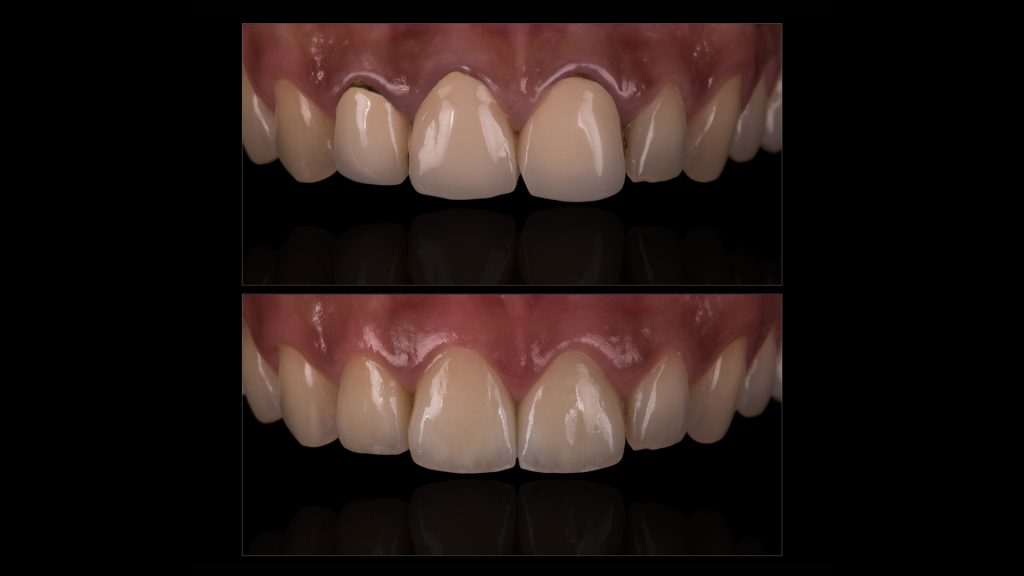 Tooth crowns before and after photos
