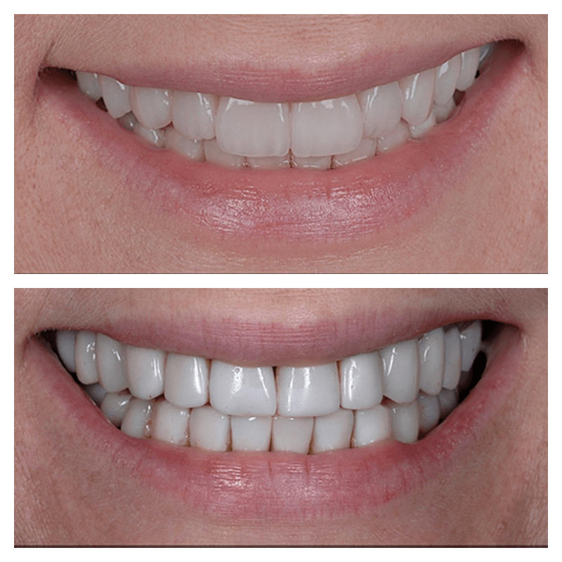 full mouth rehabilitation before and after