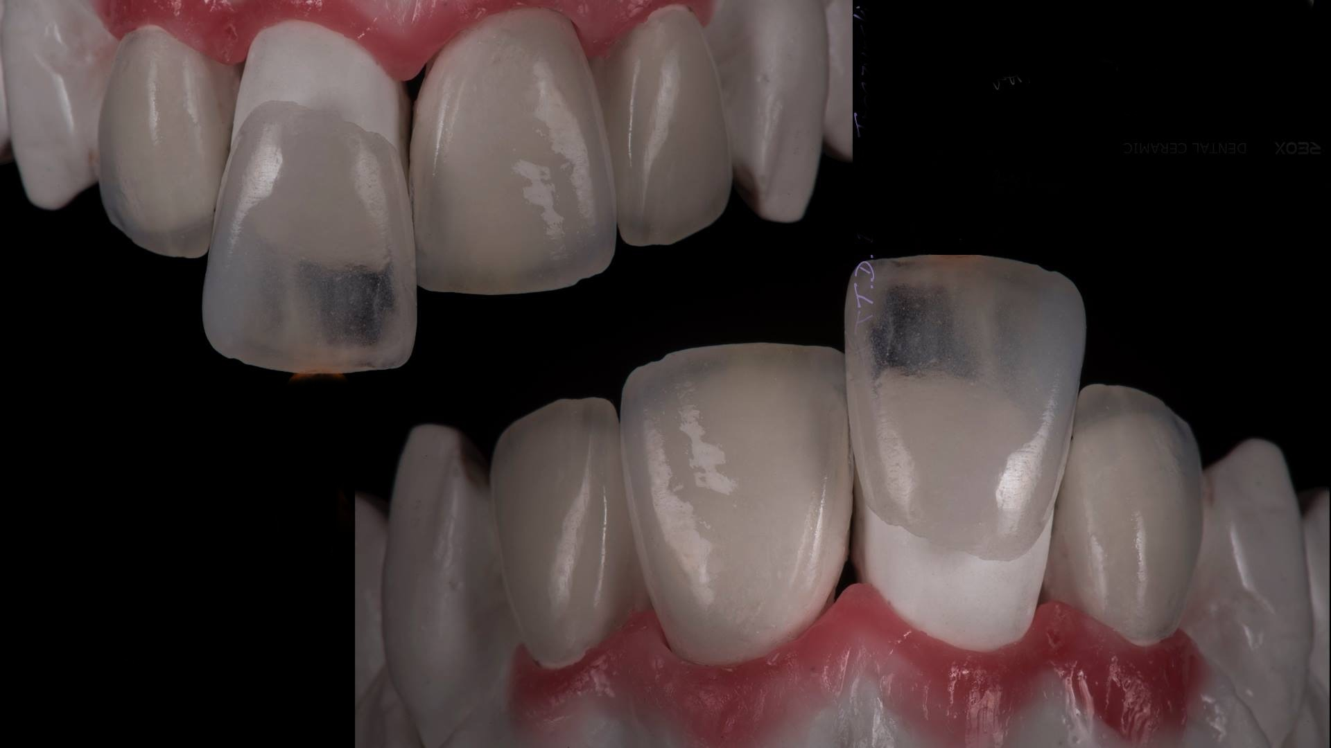 Porcelain dental veneer before and after