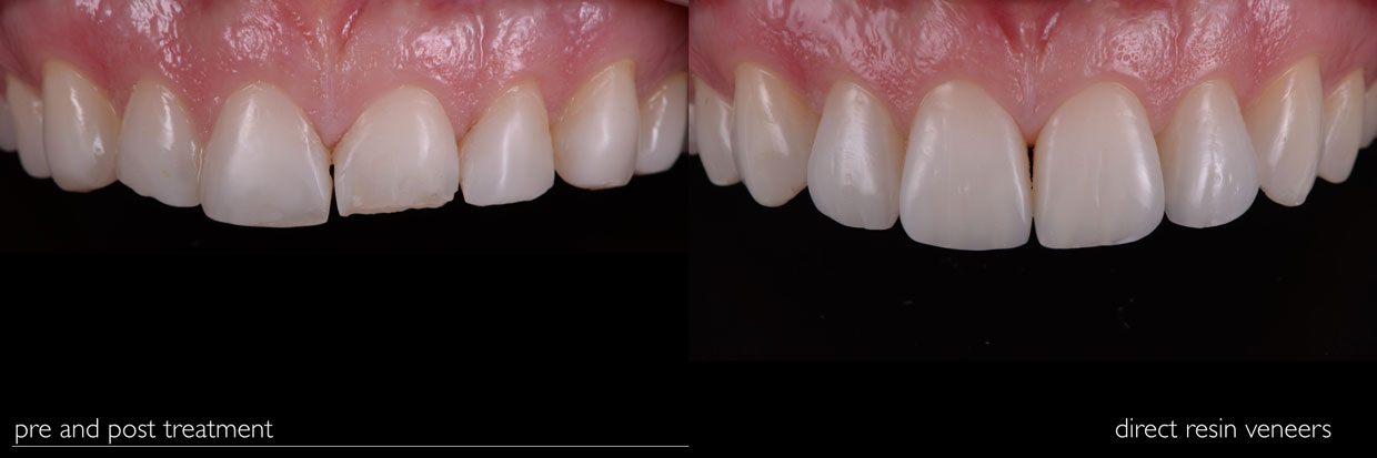 Smile Gallery - Before and After Dental Photos - Smile Makeovers .
