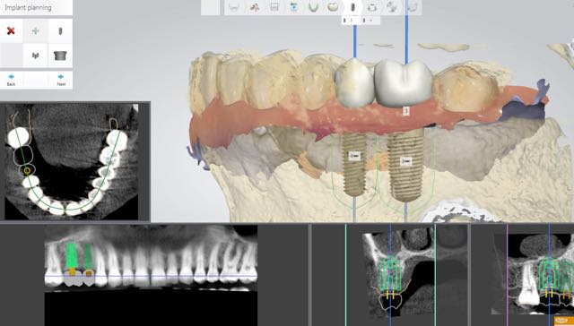 Low - Radiation Dental X rays