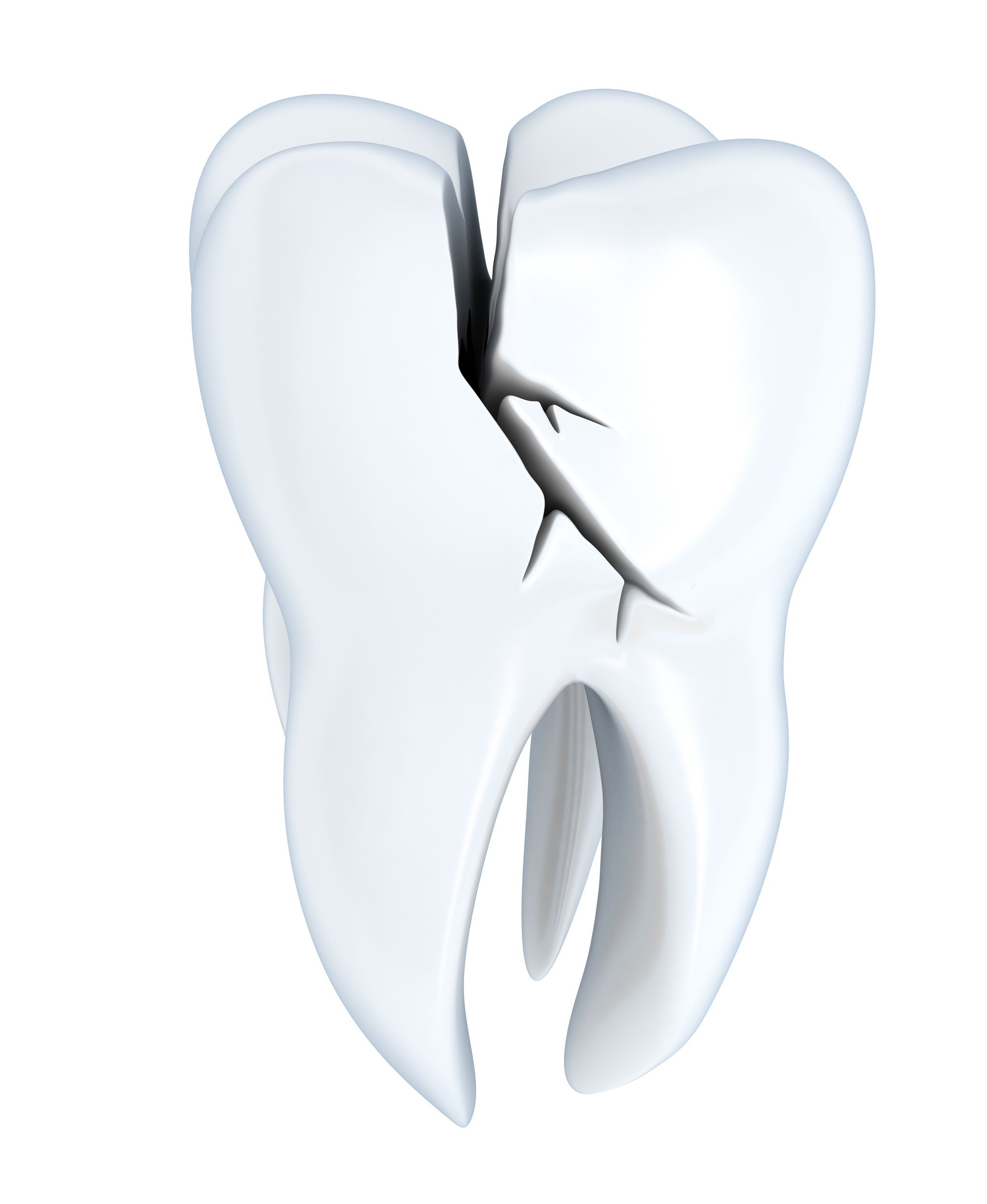 cracked tooth treatment