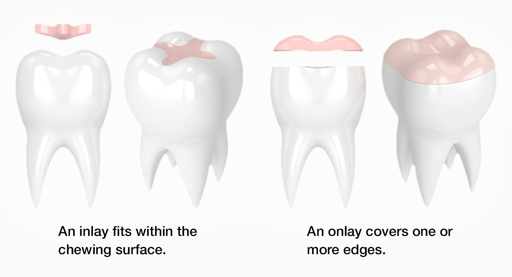A Guide to Onlays and Inlays - Dental Guide