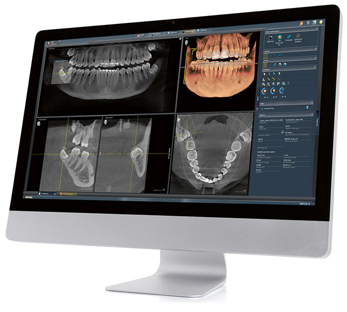 Digital Dental X-rays