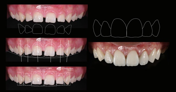 Gappy Smile treatment Before and After images