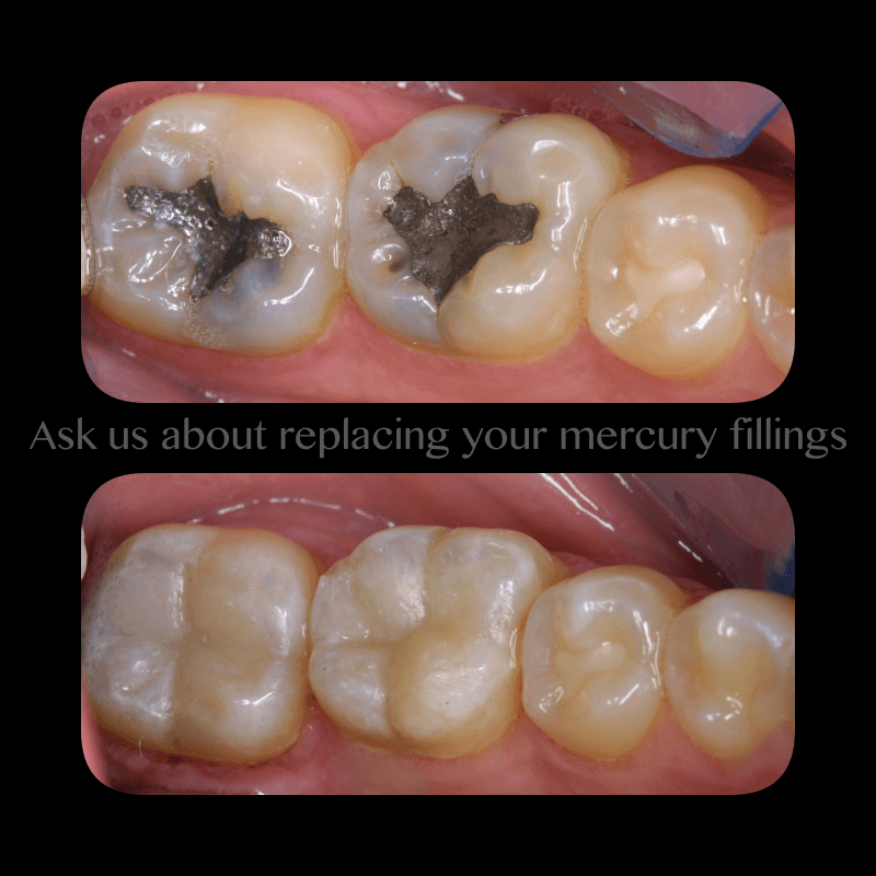 Dental Inlays Onlays before and after photos