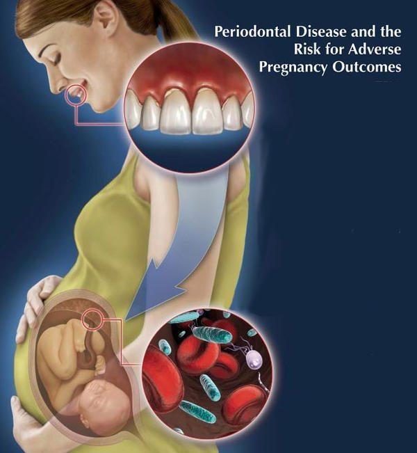 pregnancy causing gum disease