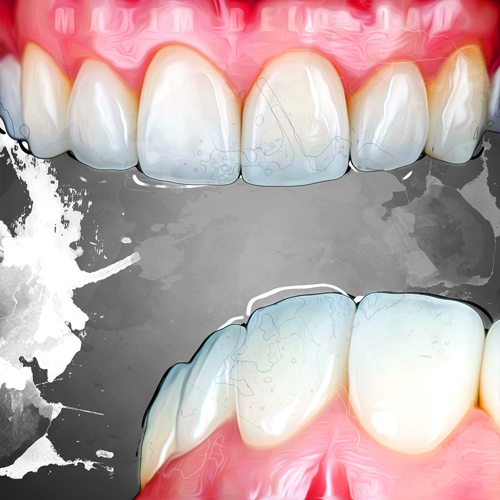 Tooth Wear Treatment Options