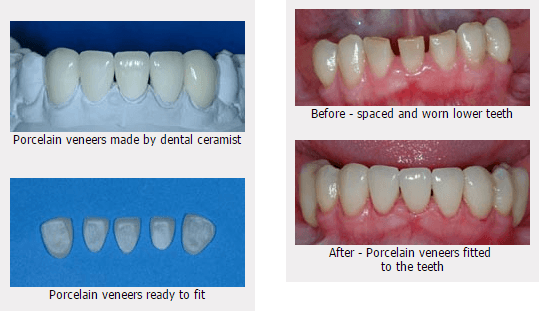 Images for smile gallery before and after