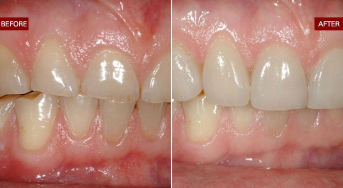 Cosmetic Dentistry makeover Before and after photos