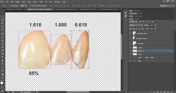 Digital Smile Design in Lancashire